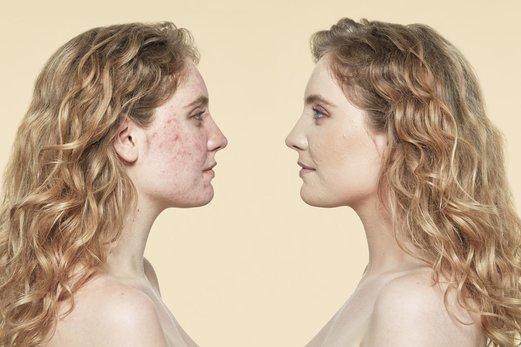 Pieles con rosácea: ¿qué bases de maquillaje usar y como aplicar?
