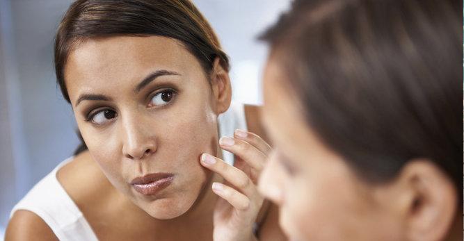 Imperfecciones, granos y puntos negros en el rostro: ¿Cómo actuar rápido y bien?